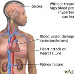 Health Tips: Hypertension