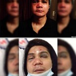 Vhong Navarro's Medical Report Update After Brutal Attack