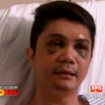 Vhong Navarro's Buzz ng Bayan Interview Full Transcript (Video)