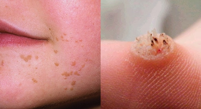 Cheapest Way To Effectively Remove Warts Everyone Needs To Know