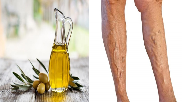 Get Rid Of Varicose Veins With Olive Oil - Philippine