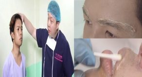 Updates On Marlou Arizala's New Look After His Controversial Surgery