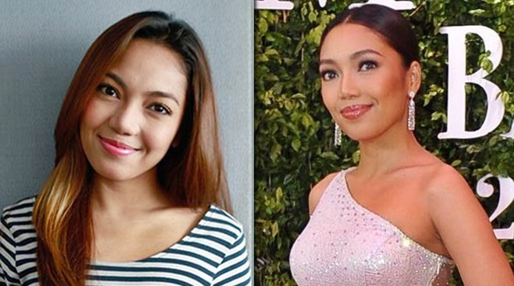 Celebrities Admits To Have Undergone Cosmetic Surgery