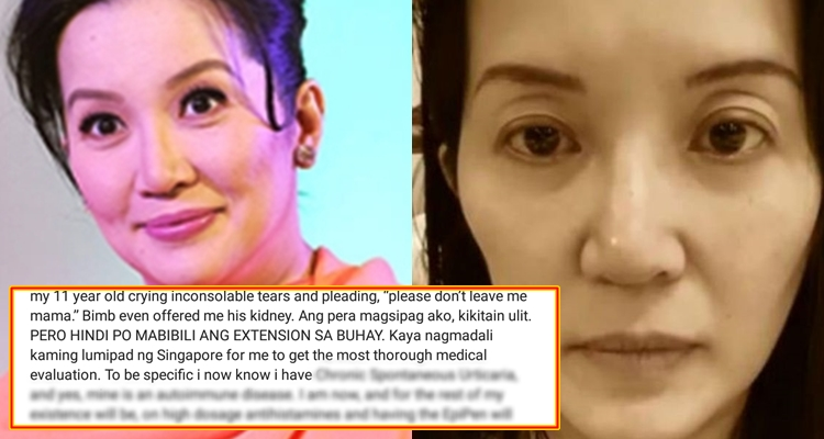 Kris Aquino Chronic Disease