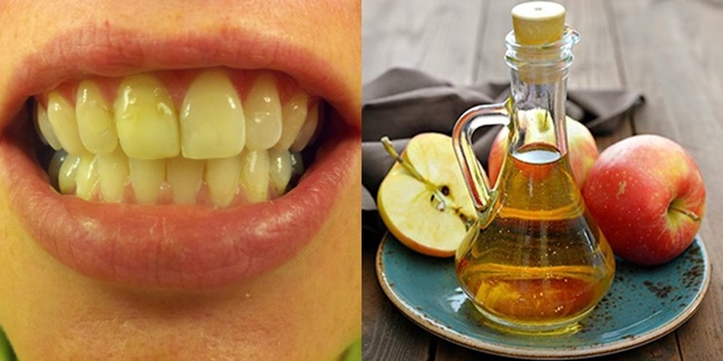 yellow teeth treatment how to whiten your teeth w apple cider vinegar. Black Bedroom Furniture Sets. Home Design Ideas