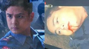 Cardo Dalisay Stabbed & Shot, Netizens Have Various Reactions
