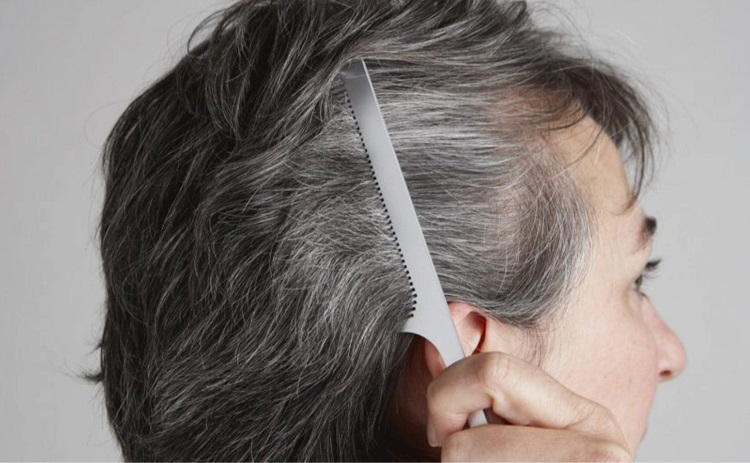 WHITE HAIR: Causes, Treatment & Tips To Prevent Premature