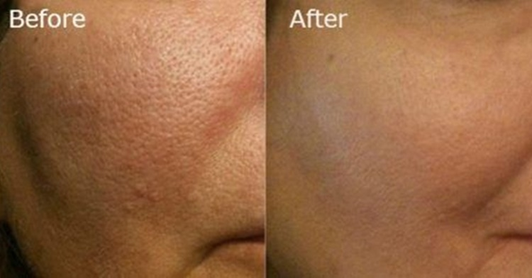 large pores home remedies