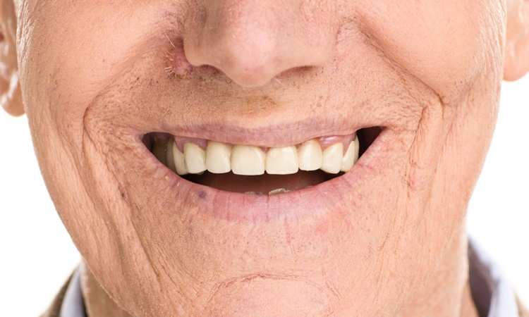 Old-man-dentures-1