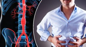 Abdominal Aortic Aneurysm: Symptoms, Causes & Risk Factors