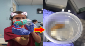 Patient Submitted a Piece of Yema Instead of Human Waste for Medical Test