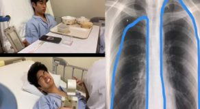 Ex-PBB 8 Housemate Fumiya Sankai Returns To Japan for Lung Operation