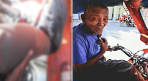 Elderly Man with Filariasis Stills Works as Tricycle Driver to Buy Himself Medicine