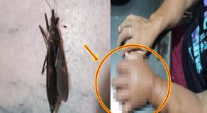 Male Netizen Warns Public About This Bug After He Suffered from Severe Swelling