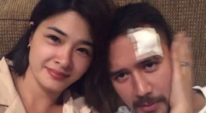 JM De Guzman Suffers Injury During Taping For New Show w/ Yam Concepcion